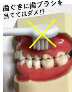 歯ぐきに歯ブラシを当てて磨く