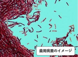 歯周病菌のイメージ