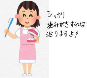 歯科衛生士のブラッシング指導