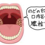 喉の奥が白いのは口内炎ではなく膿栓だった!?口内炎と膿栓を見分ける方法を教えます