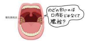 喉の白いもの