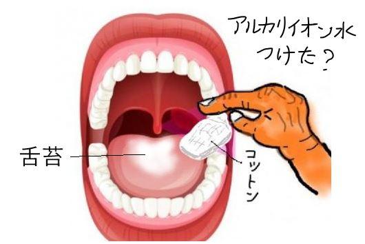 舌苔をアルカリイオン水のコットンでふき取る