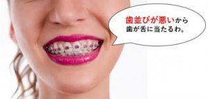 歯並びが悪くて歯が舌に当たる