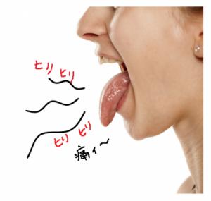 舌がヒリヒリする