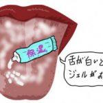 舌が白いなら保湿ジェルをつけるのがおススメ。なぜおススメなのか・・・
