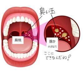 扁桃腺に膿栓ができる