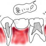 ブリッジの歯が臭い!作り直し以外に対策はないの?