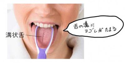 舌の溝が舌苔の原因になる