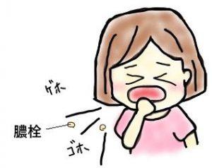 膿栓の取り方…咳
