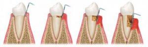 健康な歯から歯周病までのポケットの図