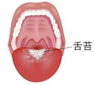 舌の奥に舌苔ができてベロが白い