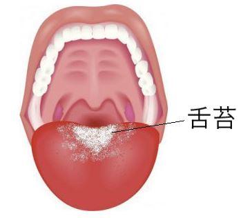 舌苔ができて舌が白い