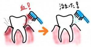 美息美人での歯磨きで歯肉炎から出血が治まる図