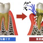 口臭を感じたら歯周病を疑え!いろんな歯周病と対策方法