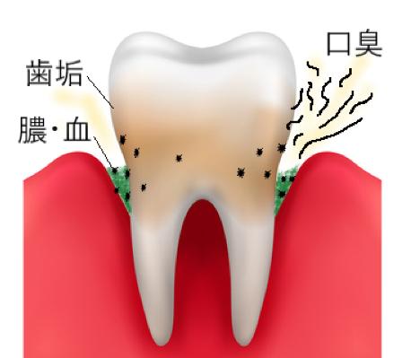 歯周病の口臭