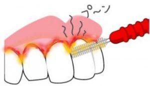 歯間ブラシで臭う