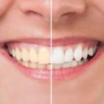 美息美人で歯を白くできますか?ホワイトニングの方法について