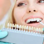 歯の黄ばみ・黒ずみ!着色原因と効果的なホワイトニング対策