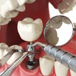 インプラントは歯周病になりやすい!?メリットとデメリットは?