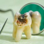 歯磨きしているのに、虫歯・歯周病・口臭になるのは何故?結果を出す歯磨きの仕方はコレ!