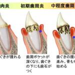 歯周病予防のためのブラッシング方法!口臭を予防するには欠かせません