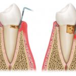 歯周病を治すには?歯医者が本気で教える治療法&歯科衛生士によるブラッシング指導