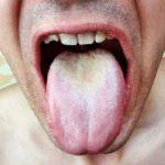 舌苔が取れない原因!舌の奥だけ白くなるのはなぜ?舌の病気なの?